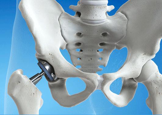 Los implantes y las prótesis quirúrgicas en los seguros de salud