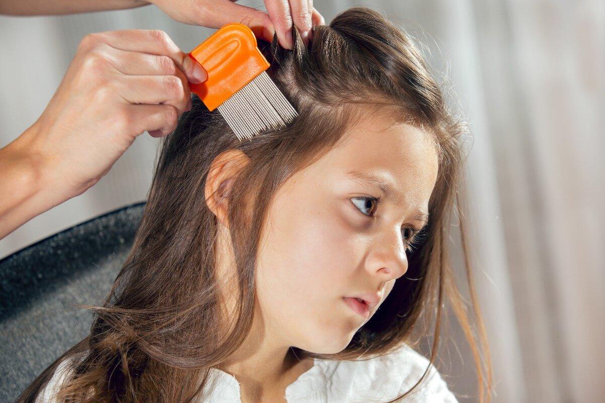 Piojos en niños: remedios para combatirlos y evitarlos